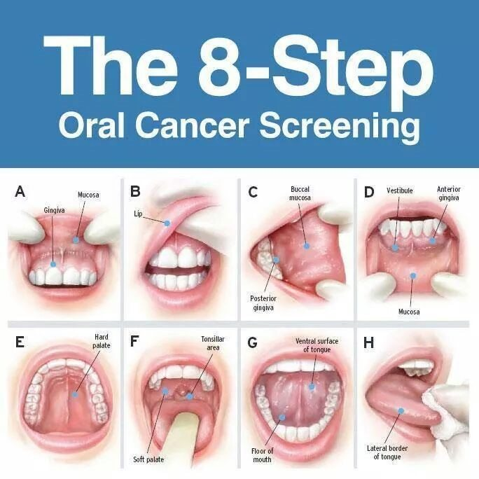 The 8 Step Oral Cancer Screening